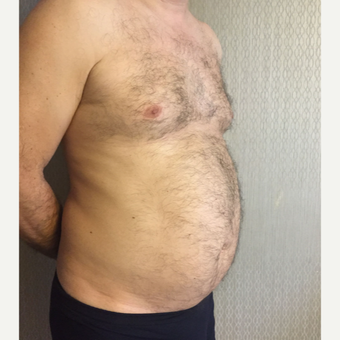 35-44 year old man treated with Liposuction on Chest and Abdomen area before 3569034