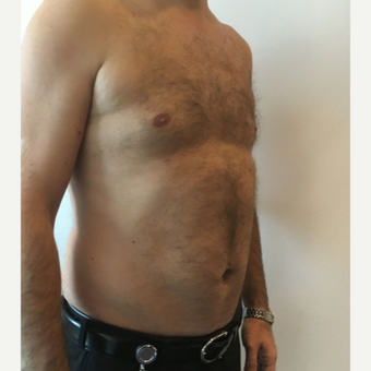 35-44 year old man treated with Liposuction on Chest and Abdomen area after 3569034