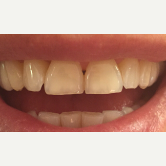 25-34 year old woman treated with Teeth Whitening before 3624457