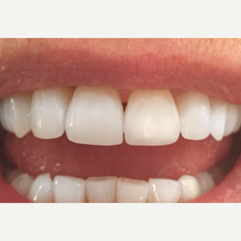 25-34 year old woman treated with Teeth Whitening after 3624457
