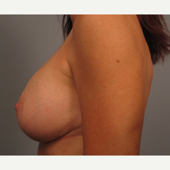 45-54 year old woman treated with Breast Lift with Implants after 3464322