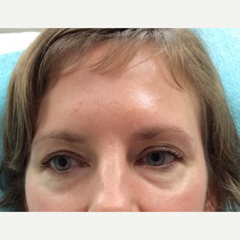 35-44 year old woman treated with Eye Bags Treatment before 3646479