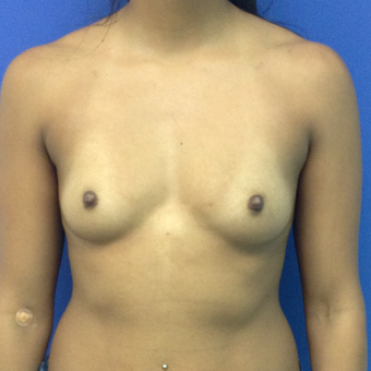 18-24 year old woman treated with Breast Augmentation before 3746832