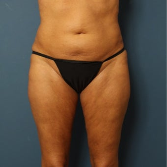 55-64 year old woman treated with Smart Lipo before 2553432