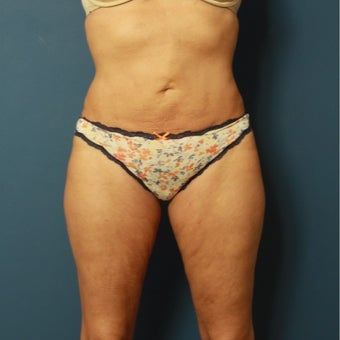 55-64 year old woman treated with Smart Lipo after 2553432