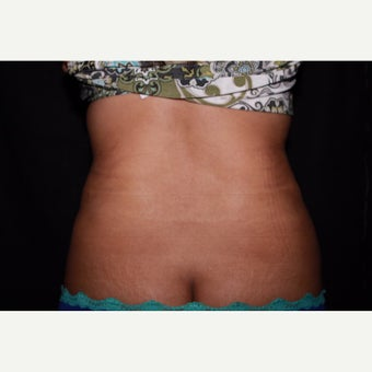Laser Liposuction - Flanks after 2016004