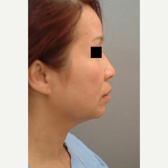54 year old woman treated with Neck Lift