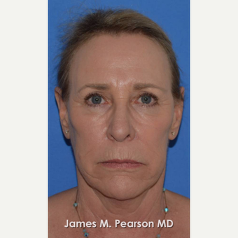55-64 year old woman treated with Facelift before 3802271
