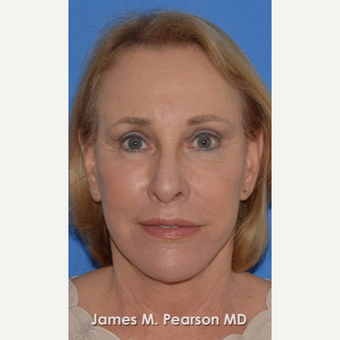 55-64 year old woman treated with Facelift after 3802271