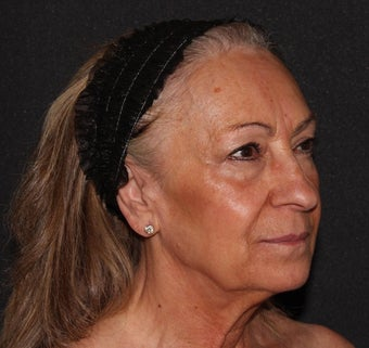 Woman treated with Sculptra to improve laxity and restore facial volume after 2389658