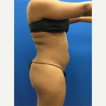 25-34 year old woman treated with Laser Liposuction before 3142114