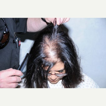 45-54 year old woman treated with FUE Hair Transplant before 2484246