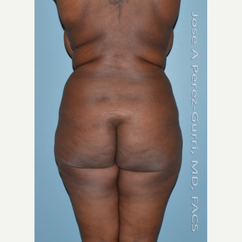 25-34 year old woman treated with Brazilian Butt Lift before 2840441