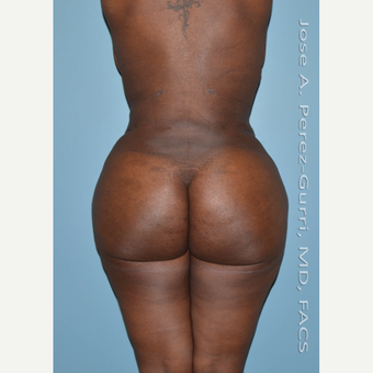 25-34 year old woman treated with Brazilian Butt Lift after 2840441