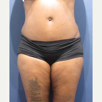35-44 year old woman treated with Tummy Tuck after 3345206