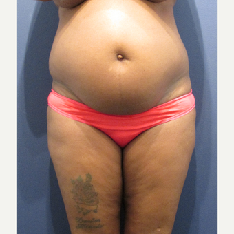 35-44 year old woman treated with Tummy Tuck before 3345206