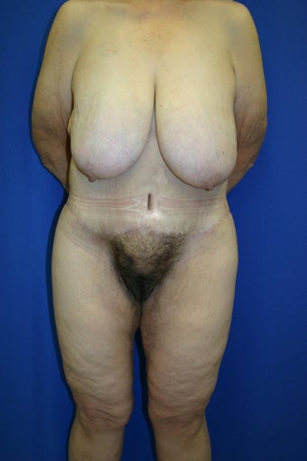 45-54 year old woman treated with Body Lift after 2588396