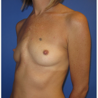 35-44 year old woman treated with Breast Implants (371cc) before 2848401
