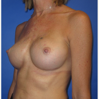35-44 year old woman treated with Breast Implants (371cc) after 2848401