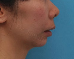 Chin surgery before 1485007