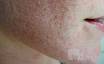 Synergy treatments for acne scars- Erbium and CO2 laser before 1440958