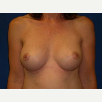 65-74 year old woman treated with Breast Lift after 3009184
