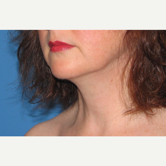 35-44 year old woman treated with Chin Liposuction after 3638350