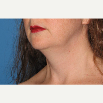 35-44 year old woman treated with Chin Liposuction before 3638350