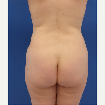 27 y/o female - 1500cc per side  Lipo abdomen, flanks, back with fat transfer to the buttocks before 3433783