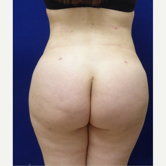 27 y/o female - 1500cc per side  Lipo abdomen, flanks, back with fat transfer to the buttocks after 3433783