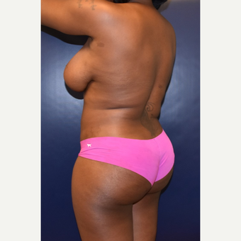 25-34 year old woman treated with Butt Augmentation after 3344443