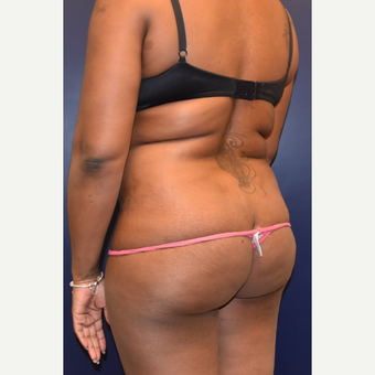 25-34 year old woman treated with Butt Augmentation before 3344443