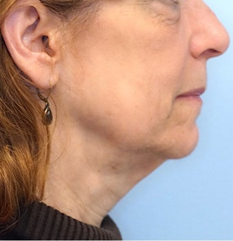 65-74 year old woman treated with Facelift before 2986659