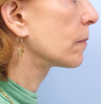 65-74 year old woman treated with Facelift after 2986659