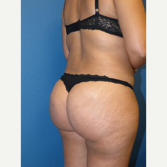 Liposuction after 3807157