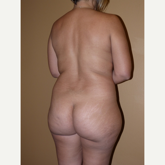 Liposuction before 3807157