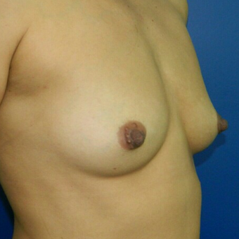 35-44 year old woman treated with Breast Augmentation before 3045216