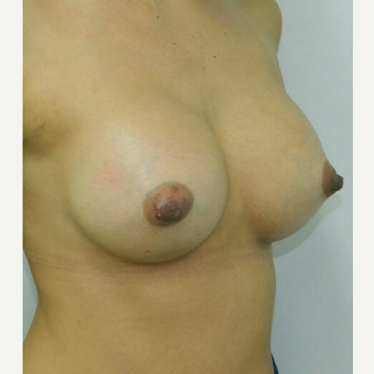 35-44 year old woman treated with Breast Augmentation after 3045216