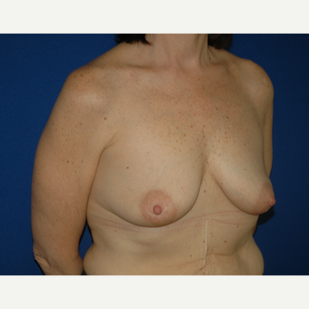 55-64 year old woman treated with Breast Lift with Implants before 3181967