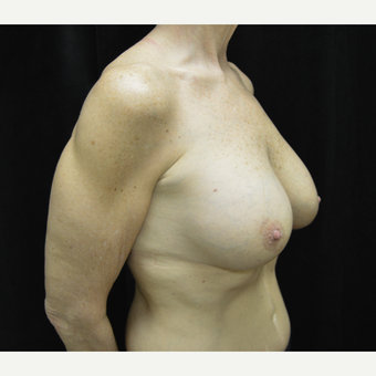 55-64 year old woman treated with Breast Lift with Implants after 3181967