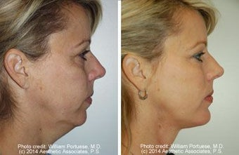 Neck Lift, Neck Lipo, Chin Implant before 212307