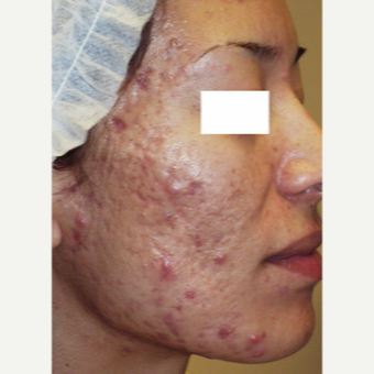 35-44 year old woman treated with Acne Scars Treatment before 3447558