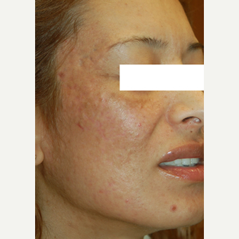 35-44 year old woman treated with Acne Scars Treatment after 3447558