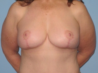 This patient had Abdominoplasty and VASER LipoSelection of abdomen, flanks, axilla and a Mastopexy. after 963260