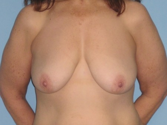 This patient had Abdominoplasty and VASER LipoSelection of abdomen, flanks, axilla and a Mastopexy. before 963260