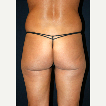 25-34 year old woman treated with Smart Lipo before 3782580
