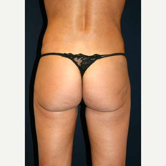 25-34 year old woman treated with Smart Lipo after 3782580