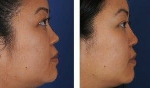Female Non-Surgical Rhinoplasty