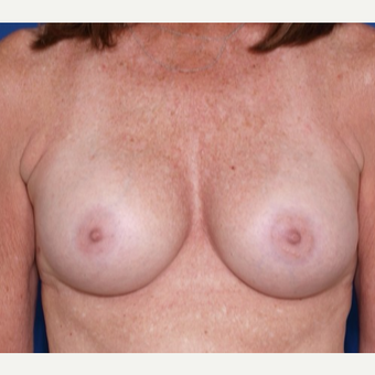 45-54 year old woman treated with Ideal Implant after 3300839