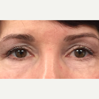 Temporal Brow Lift and Eyelid Rejuvenation: 45-54 year old female.  after 3847586